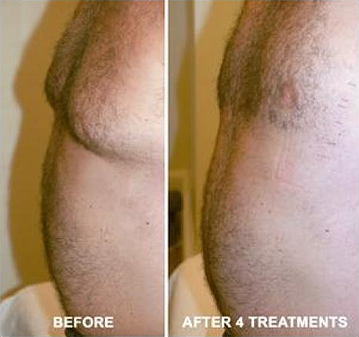 Perfectly You > Strawberry Laser Lipo > Stomach Before & After